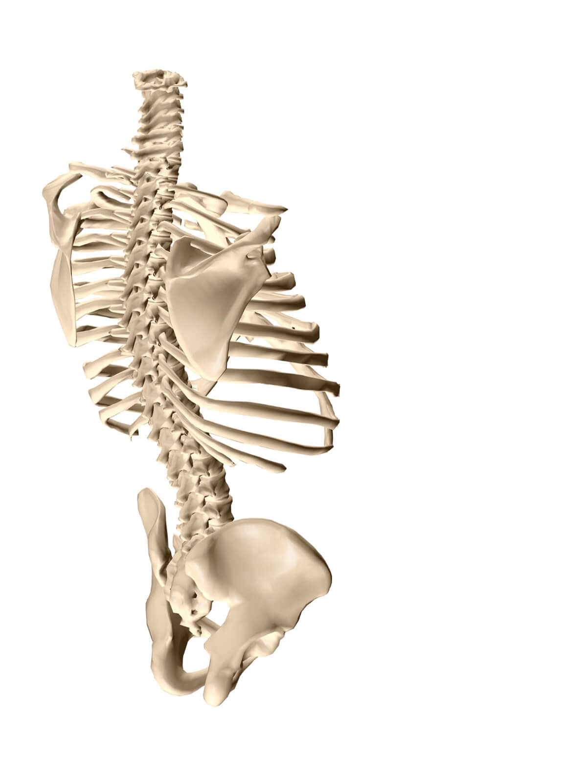 What Causes Scoliosis