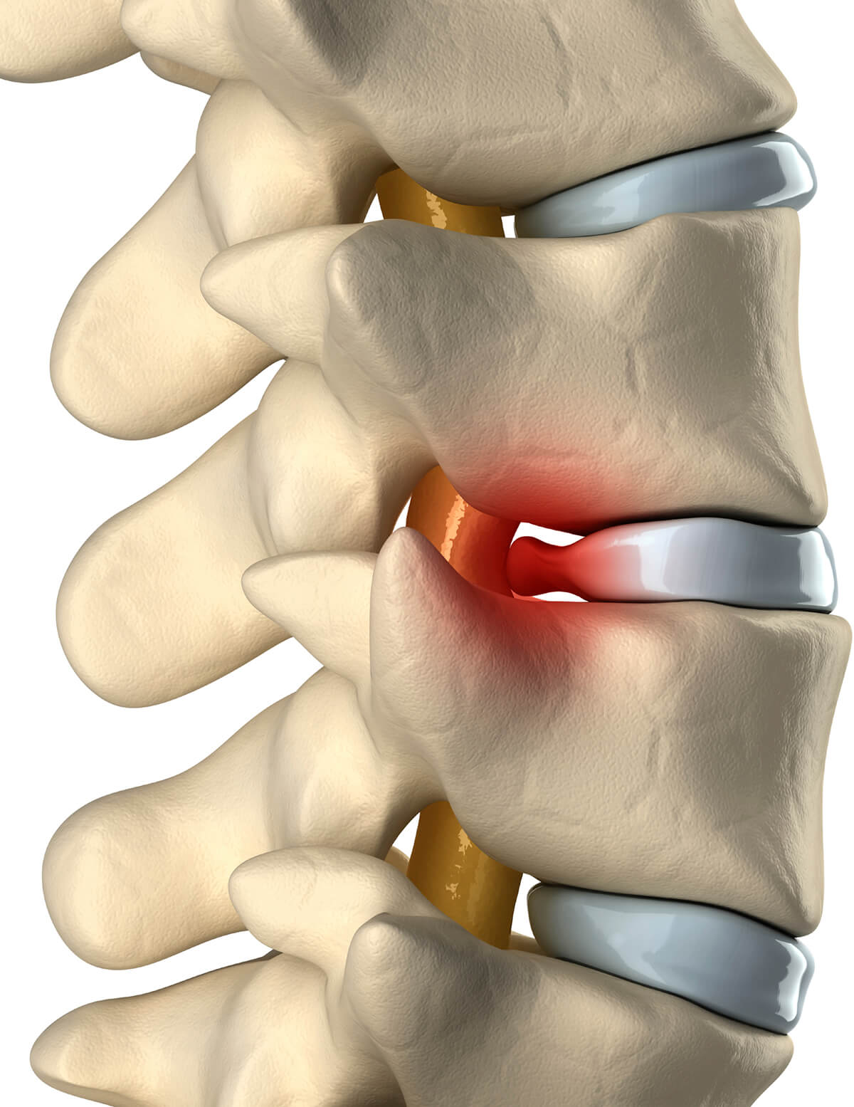 What Is A Herniated Disc Herniated Disc Symptoms